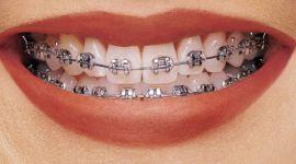 יישור שיניים באמצעות סמכי מתכת