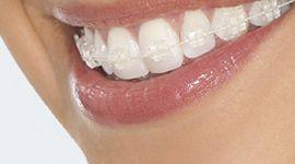 יישור שיניים INVISALIGN