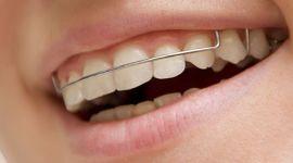 יישור שיניים באמצעות רסן