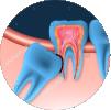 הוצאת שן בינה