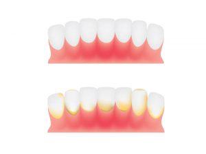 אבנית בשיניים