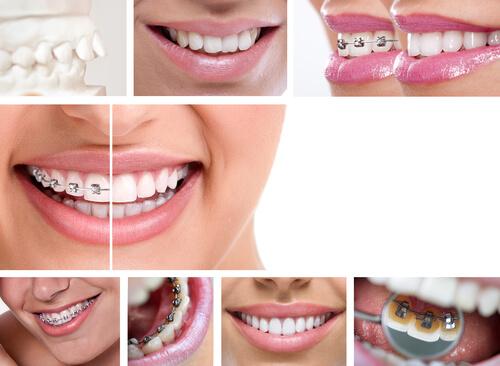 שיניים עקומות – כל הסיבות והפתרונות