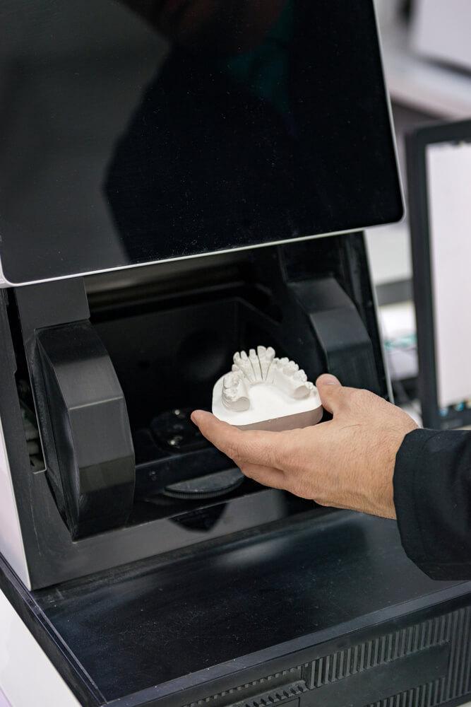 ניוזלטר פסח 2017 טכנולוגיית CAD/CAM במרפאה